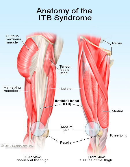 I T Band Hip And Lateral Thigh Pain Grace Chiropractic